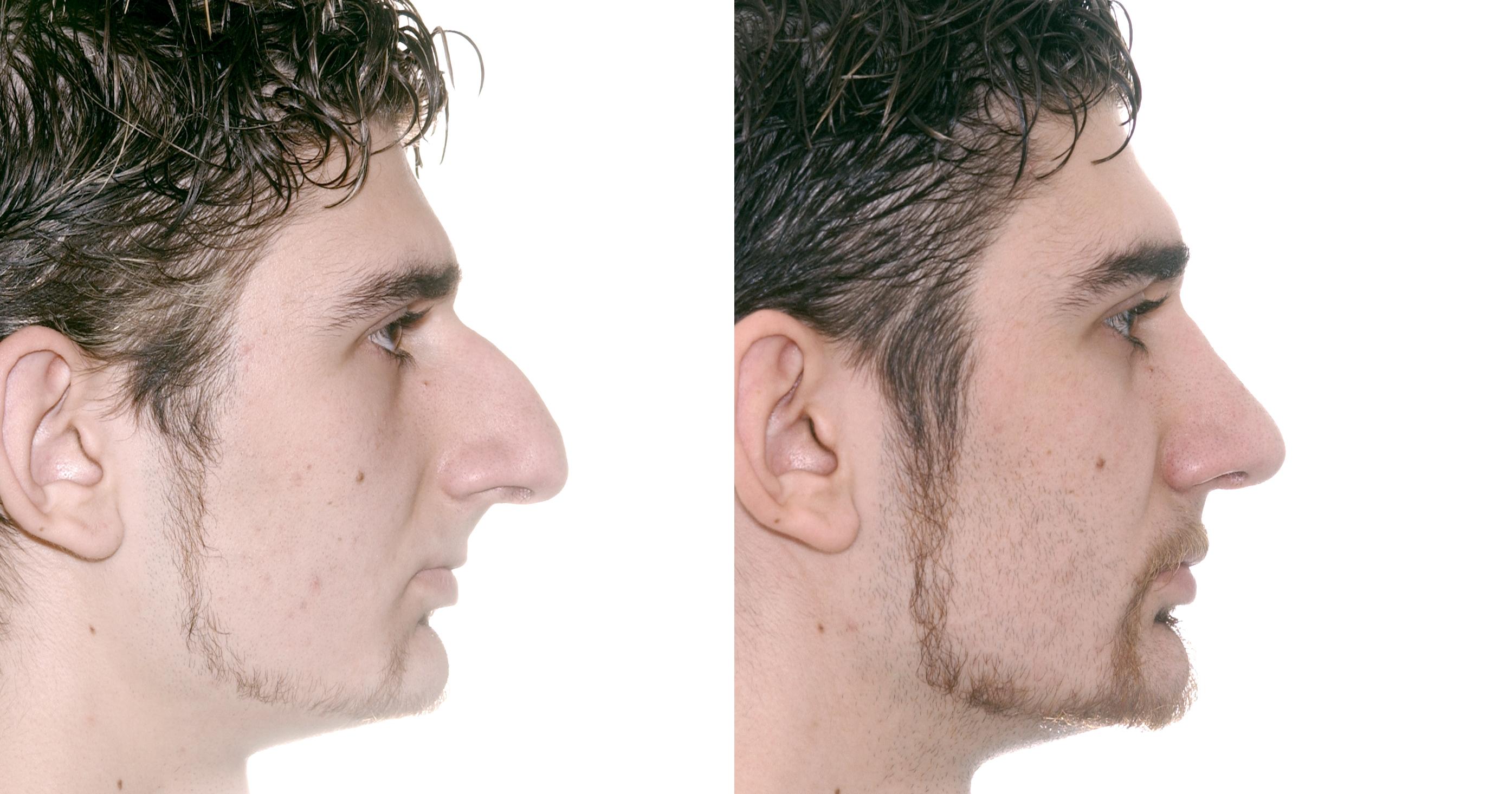 Nasengrösse - Stephan Bessler, Nasal Surgery Clinic, Zürich