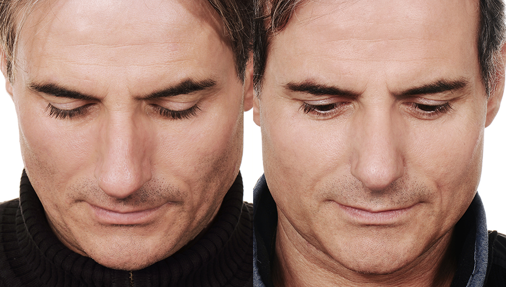 Nachher vorher bilder männer nasen op Nasen OP