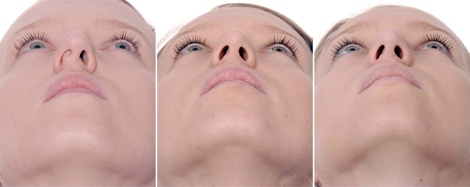 Nasal Tip Stephan Bessler Nasal Surgery Clinic Zurich
