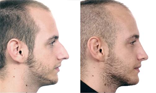 Nasal tip - Stephan Bessler, Nasal Surgery Clinic, Zurich