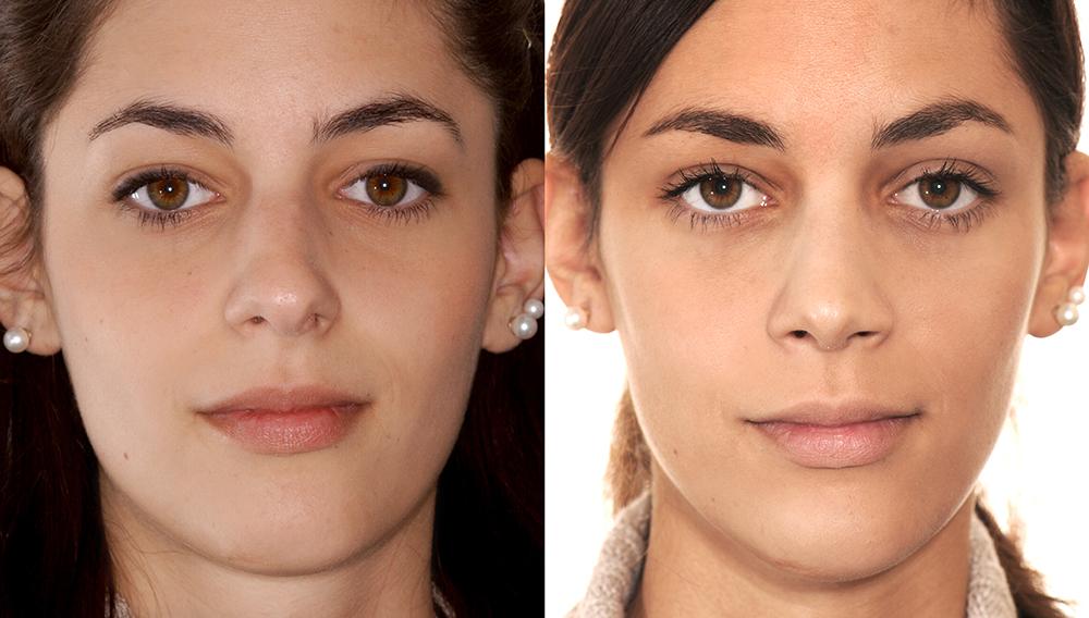 Nasenspitze - Nasenoperation, Nasenkorrektur und