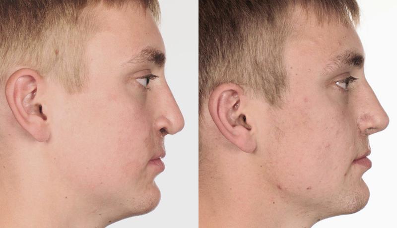 Cleft lip - Stephan Bessler, Nasal Surgery Clinic, Zurich
