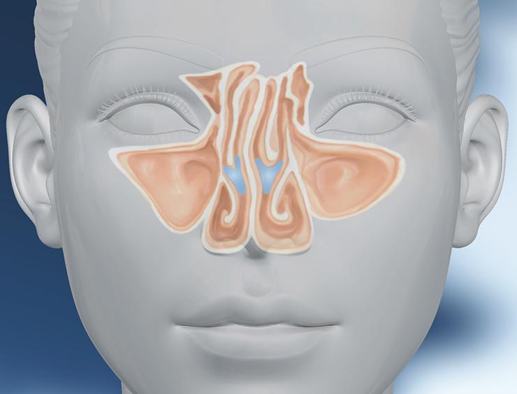Anatomie der Nase - Wichtige Begriffe zur Nasenoperation ...